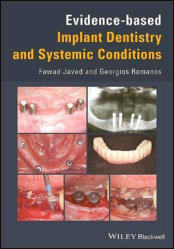 Portada del libro 9781119212249 Evidence-Based Implant Dentistry and Systemic Conditions