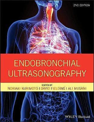 Portada del libro 9781119233947 Endobronchial Ultrasonography