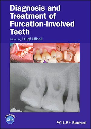 Portada del libro 9781119270652 Diagnosis and Treatment of Furcation-Involved Teeth