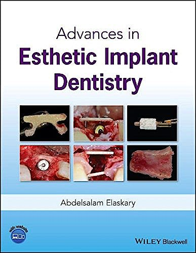 Portada del libro 9781119286677 Advances in Esthetic Implant Dentistry