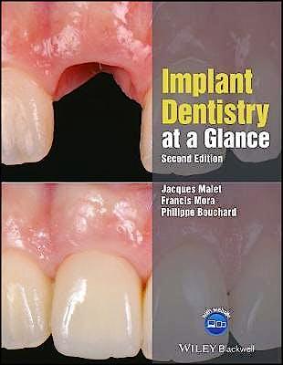 Portada del libro 9781119292609 Implant Dentistry at a Glance