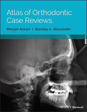 Portada del libro 9781119303756 Atlas of Orthodontic Case Reviews