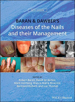 Portada del libro 9781119323358 Baran and Dawber's Diseases of the Nails and Their Management