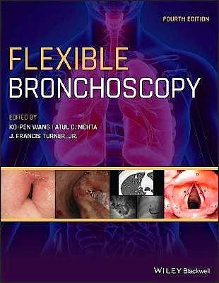 Portada del libro 9781119389057 Flexible Bronchoscopy