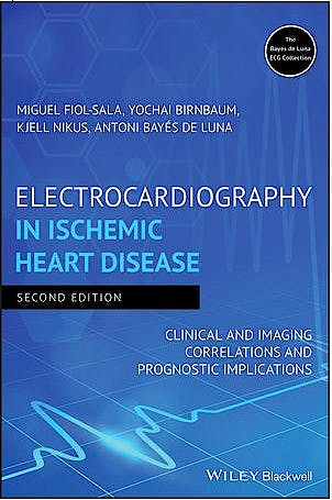 Portada del libro 9781119422662 Electrocardiography in Ischemic Heart Disease. Clinical and Imaging Correlations and Prognostic Implications
