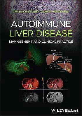 Portada del libro 9781119532606 Autoimmune Liver Disease. Management and Clinical Practice