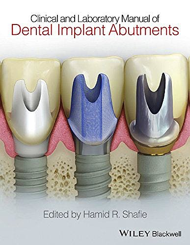 Portada del libro 9781119949817 Clinical and Laboratory Manual of Dental Implant Abutments