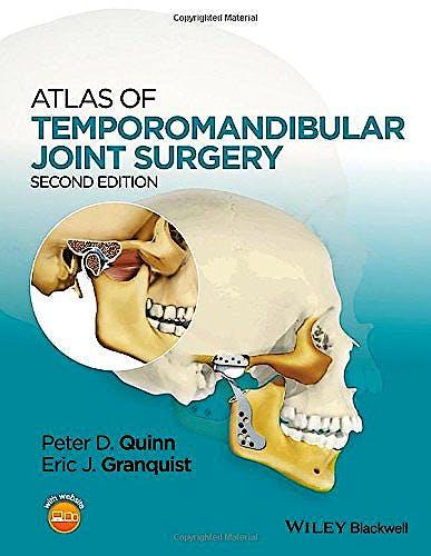 Portada del libro 9781119949855 Atlas of Temporomandibular Joint Surgery