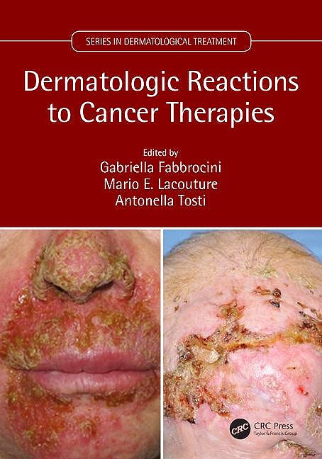 Portada del libro 9781138035539 Dermatologic Reactions to Cancer Therapies