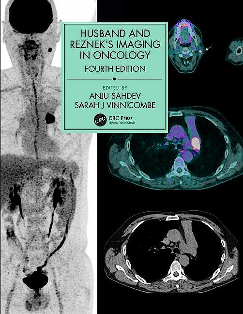 Portada del libro 9781138301238 Husband and Reznek's Imaging in Oncology