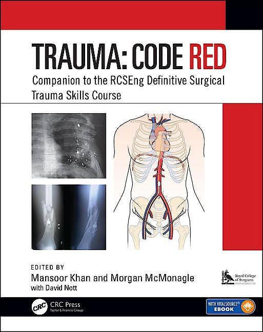Portada del libro 9781138477018 TRAUMA: CODE RED. Companion to the RCSEng Definitive Surgical Trauma Skills Course (Book + E-Book) (Softcover)