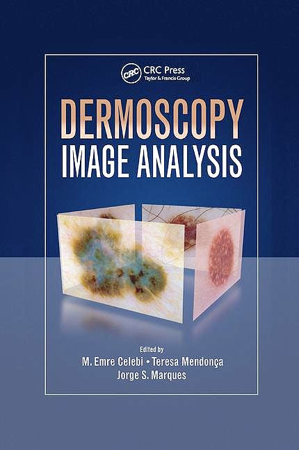 Portada del libro 9781138892873 Dermoscopy Image Analysis (Softcover)