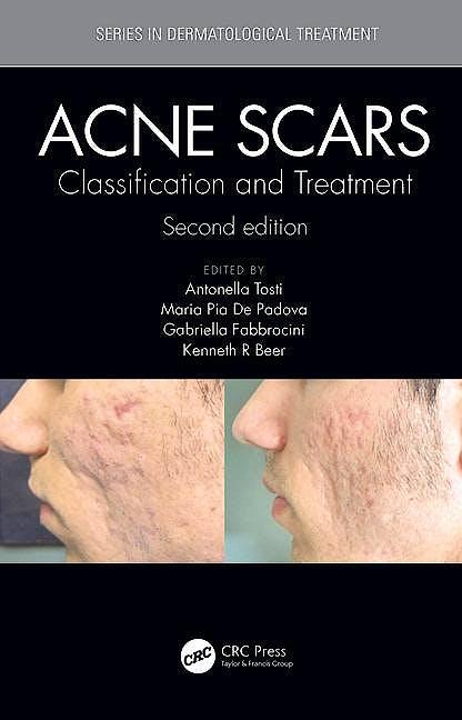 Portada del libro 9781138894228 Acne Scars. Classification and Treatment