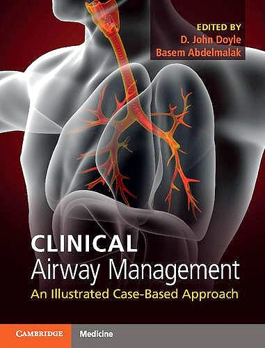 Portada del libro 9781316601358 Clinical Airway Management. an Illustrated Case-Based Approach