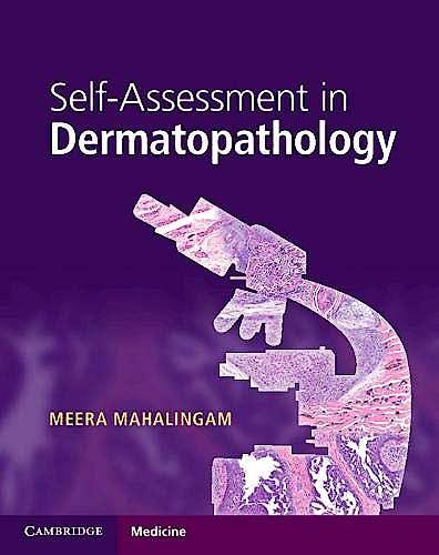 Portada del libro 9781316622872 Self-Assessment in Dermatopathology