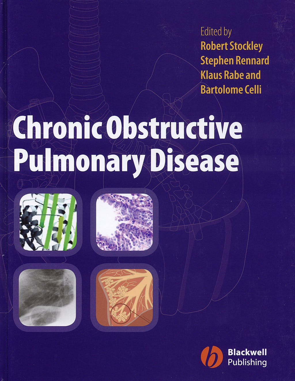 Portada del libro 9781405122894 Chronic Obstructive Pulmonary Disease