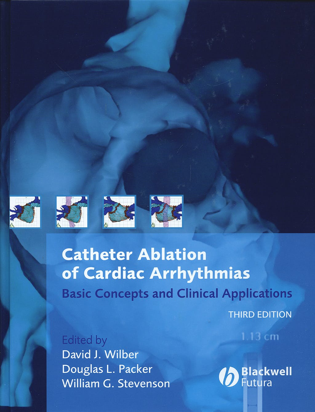 Portada del libro 9781405131179 Catheter Ablation of Cardiac Arrhythmias