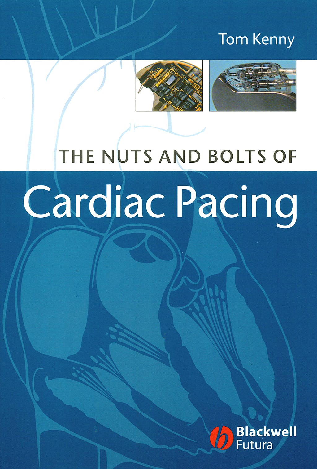 Portada del libro 9781405132978 The Nuts and Bolts of Cardiac Pacing