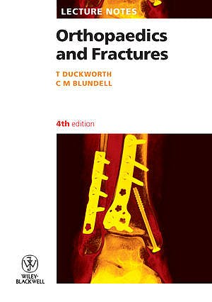 Portada del libro 9781405133296 Lecture Notes: Orthopaedics and Fractures