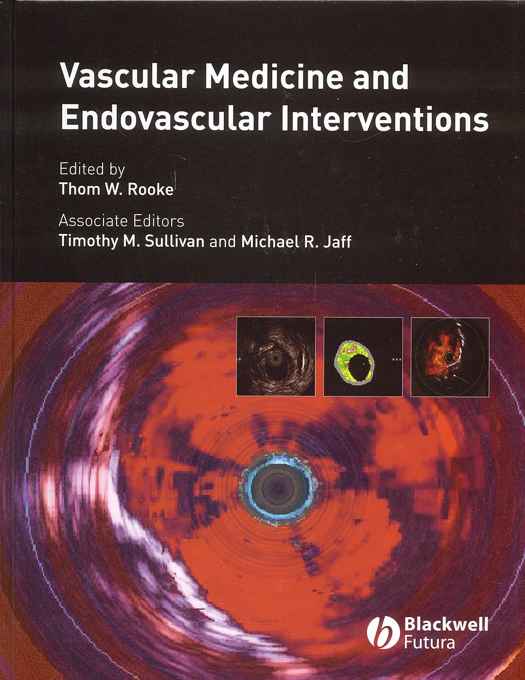 Portada del libro 9781405158275 Vascular Medicine and Endovascular Interventions