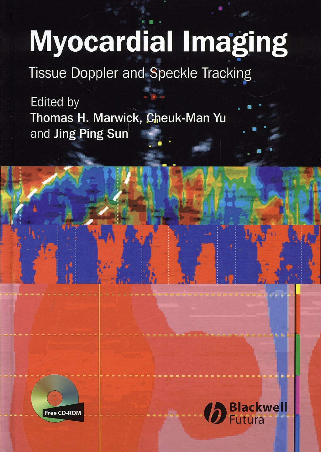 Portada del libro 9781405161138 Myocardial Imaging. Tissue Doppler and Speckle Tracking + Cd-Rom