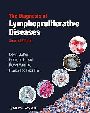 Portada del libro 9781405170147 The Diagnosis of Lymphoproliferative Diseases
