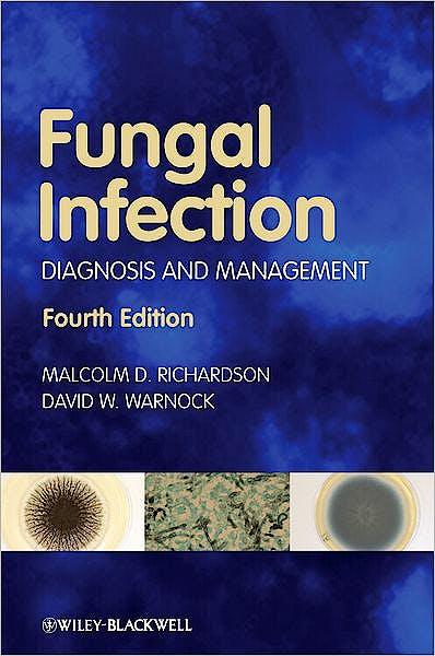 Portada del libro 9781405170567 Fungal Infection: Diagnosis and Management