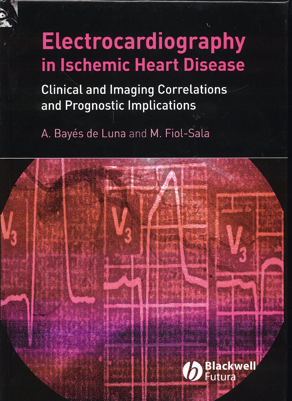 Portada del libro 9781405173629 Electrocardiograpy in Ischemic Heart Disease. Clinical and Imaging Correlations and Prognostic Implications