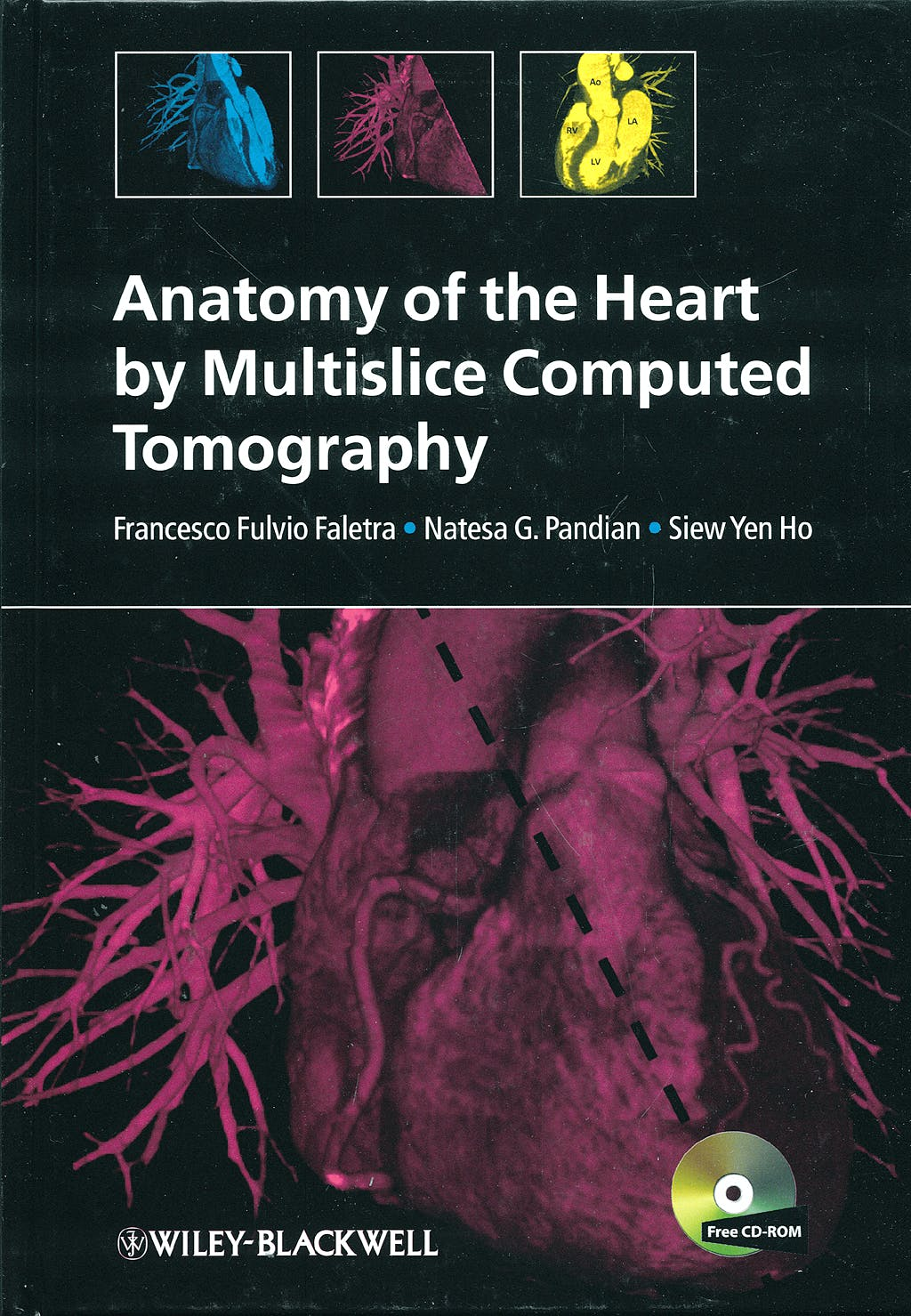 Portada del libro 9781405180559 Anatomy of the Heart by Multislice Computed Tomography + Cd-Rom