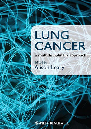 Portada del libro 9781405180757 Lung Cancer. a Multidisciplinary Approach