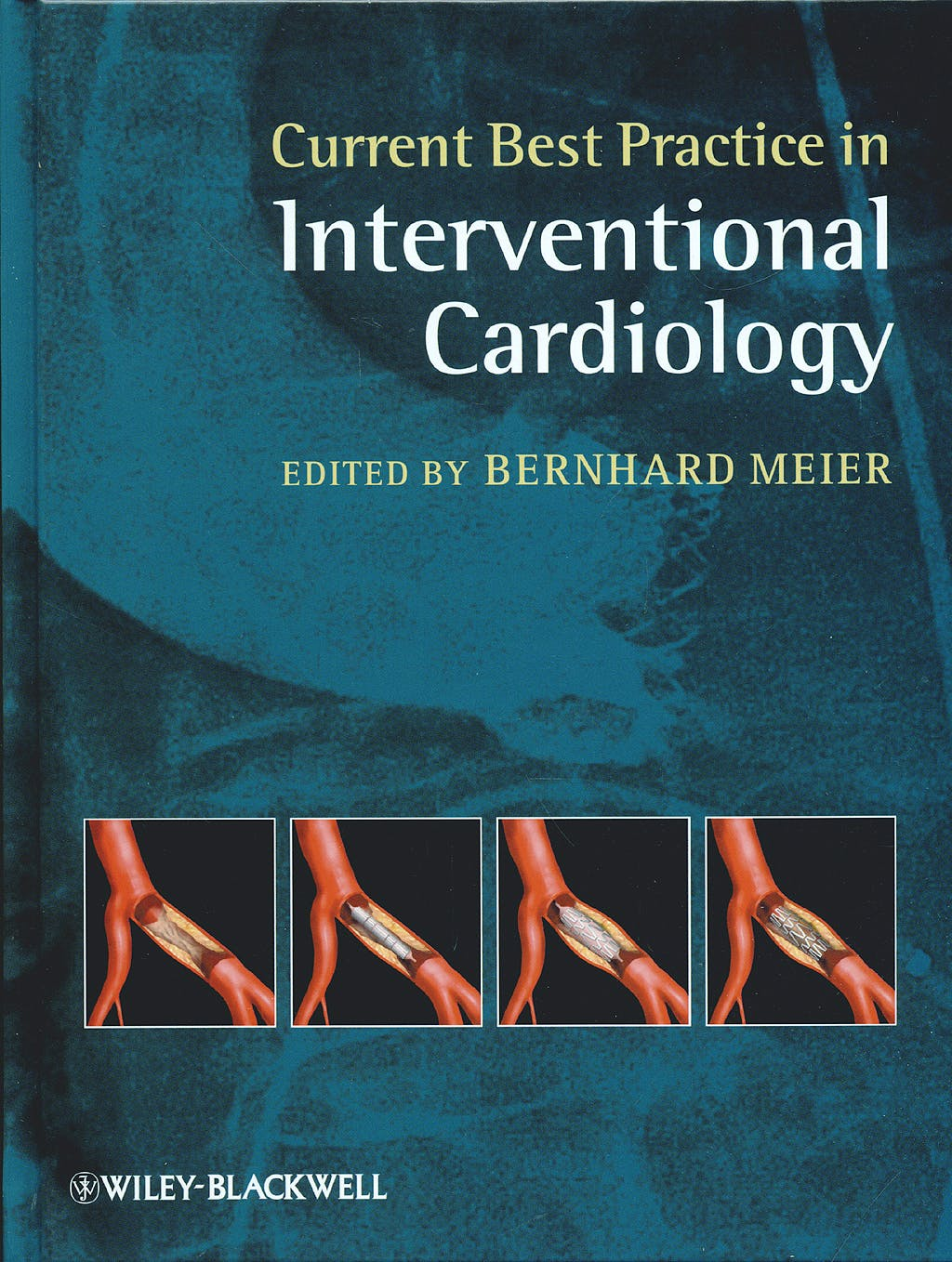 Portada del libro 9781405182553 Current Best Practice in Interventional Cardiology