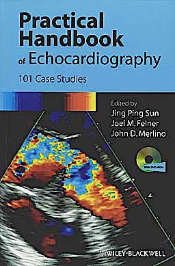 Portada del libro 9781405195560 Practical Handbook of Echocardiography. 101 Case Studies + Dvd-Rom