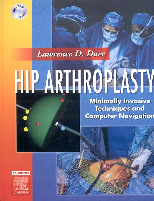 Portada del libro 9781416022978 Hip Arthroplasty + 2 Dvd´s