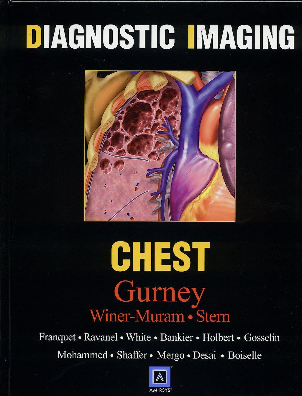 Portada del libro 9781416023340 Diagnostic Imaging. Chest