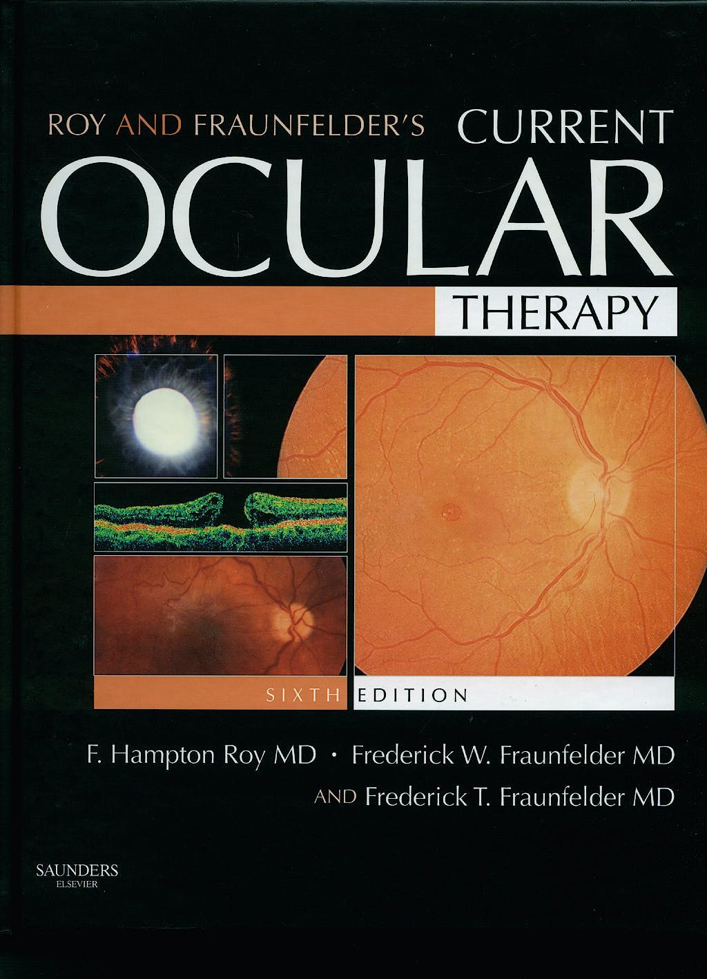 Portada del libro 9781416024477 Roy and Fraulander's Current Ocular Therapy