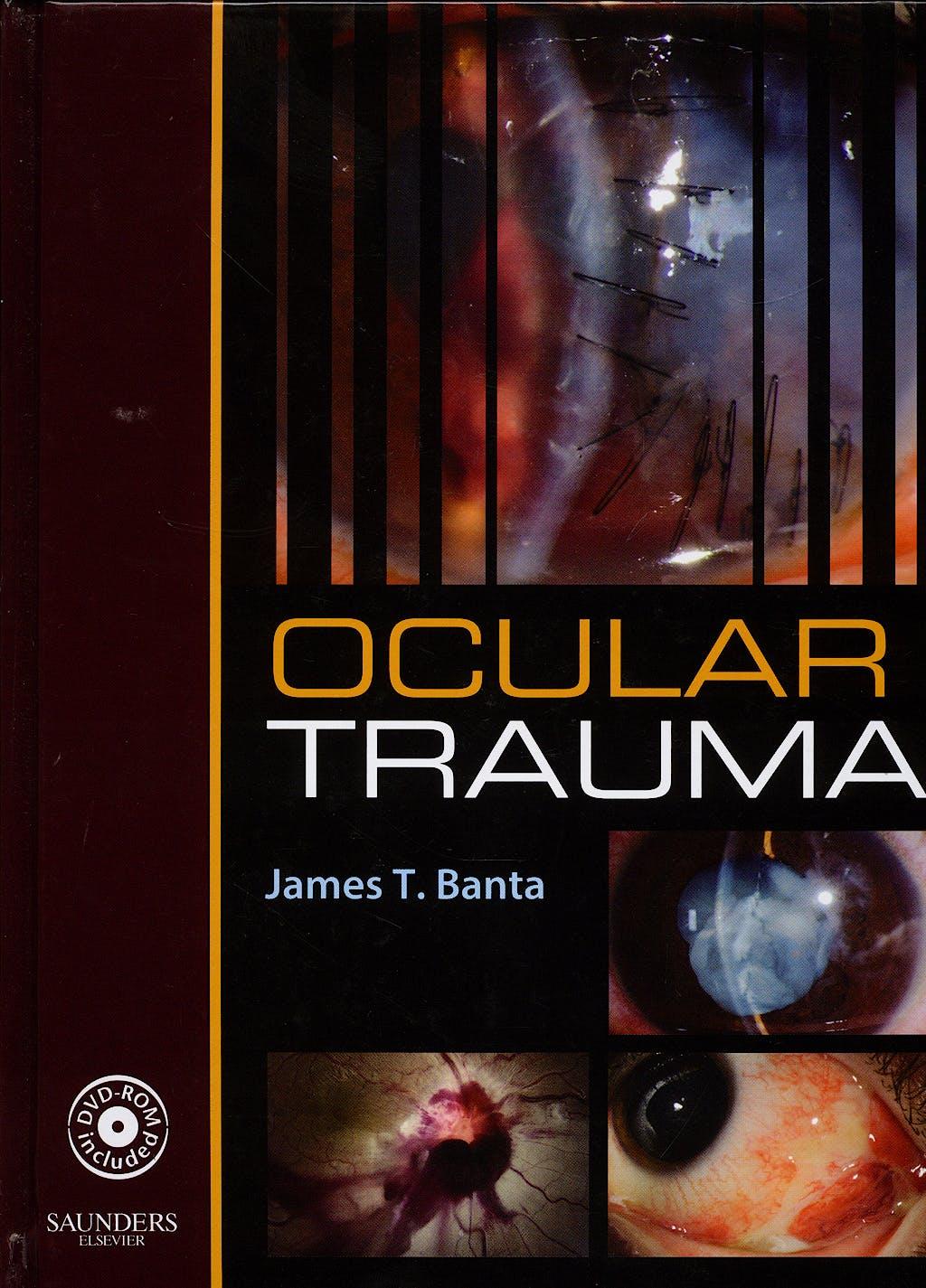 Portada del libro 9781416025597 Ocular Trauma