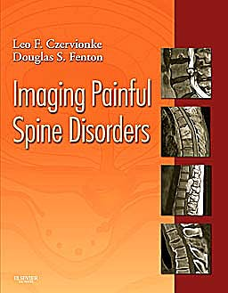 Portada del libro 9781416029045 Imaging Painful Spine Disorders (Online and Print)