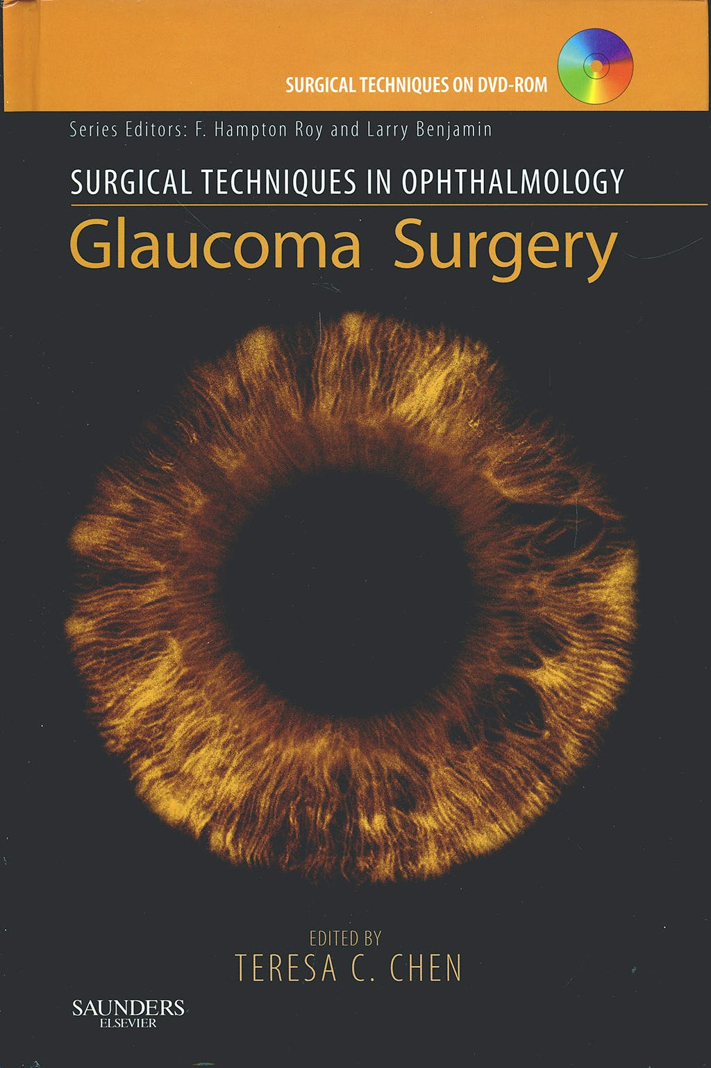 Portada del libro 9781416030218 Glaucoma Surgery. Surgical Techniques in Ophthalmology + Dvd