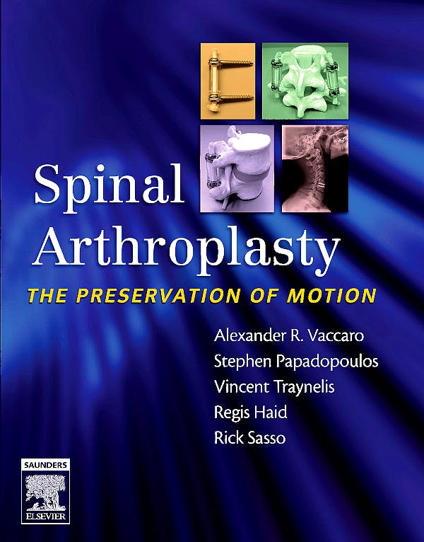 Portada del libro 9781416031253 Spinal Arthroplasty. the Preservation of Motion