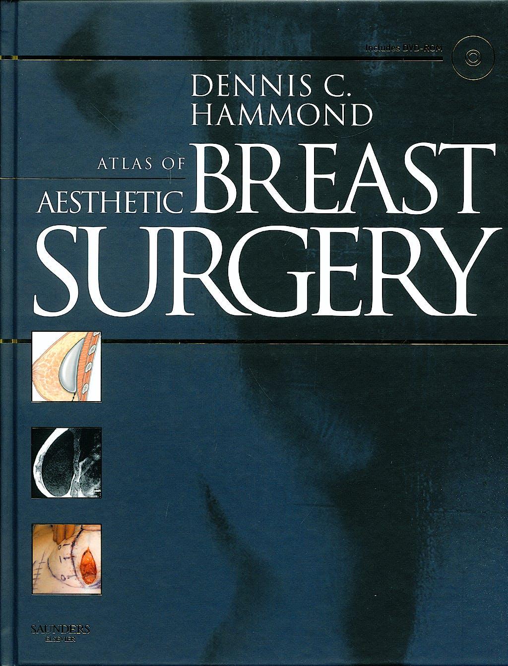 Portada del libro 9781416031840 Atlas of Aesthetic Breast Surgery + Dvd