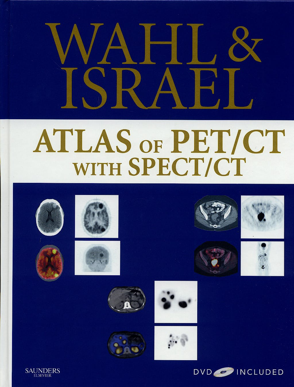 Portada del libro 9781416033615 Wahl and Israel Atlas of PET/CT with SPECT/CT + DVD
