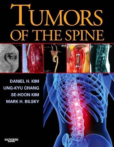 Portada del libro 9781416033677 Tumors of the Spine