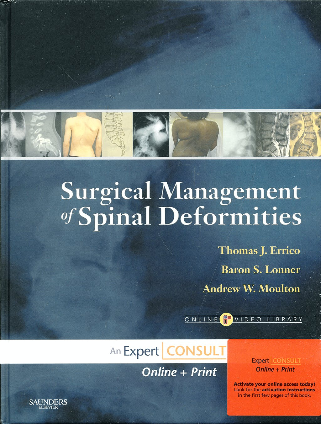 Portada del libro 9781416033721 Surgical Management of Spinal Deformities, Expert Consult Online + Print (Online Video Library)