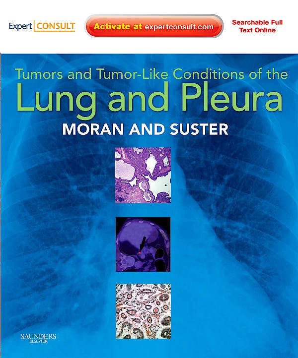 Portada del libro 9781416036241 Tumors and Tumor-like Conditions of the Lung and Pleura (Online and Print)
