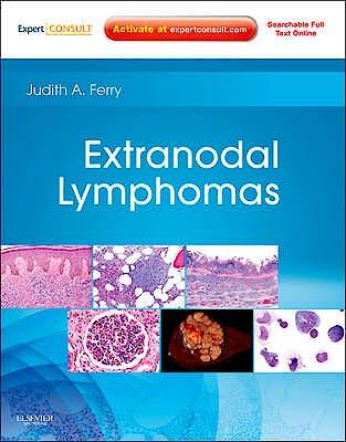 Portada del libro 9781416045793 Extranodal Lymphomas (Online and Print)