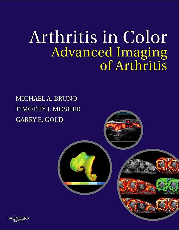 Portada del libro 9781416047223 Arthritis in Color. Advanced Imaging of Arthritis