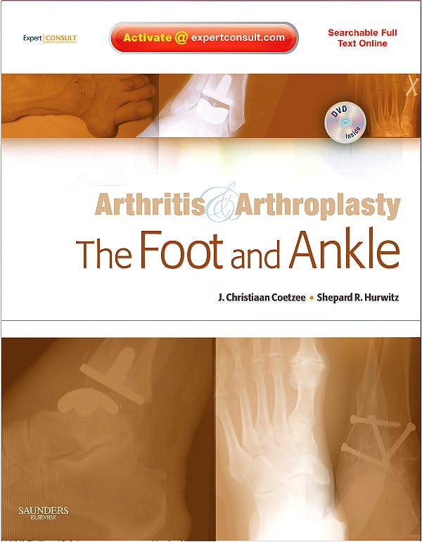 Portada del libro 9781416049722 Arthritis and Arthroplasty. The Foot and Ankle + DVD (Searchable Full Text Online)