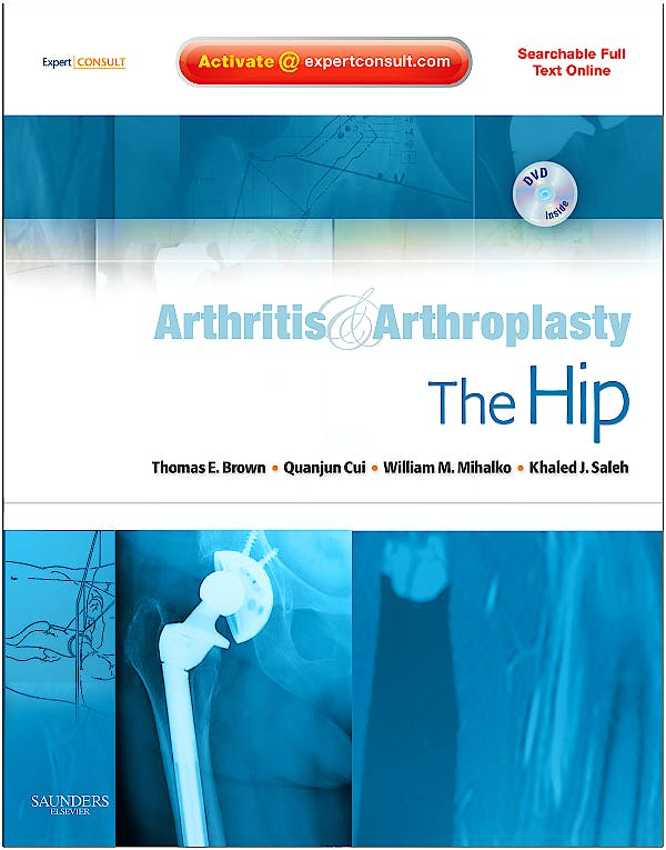 Portada del libro 9781416049739 Arthritis and Arthroplasty. the Hip + Dvd (Searchable Full Text Online)