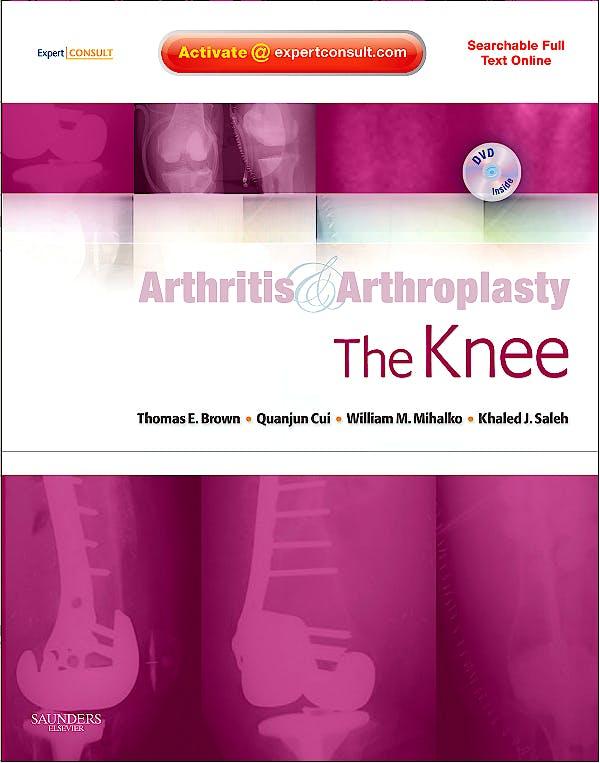 Portada del libro 9781416049746 Arthritis and Arthroplasty. the Knee + Dvd (Searchable Full Text Online)