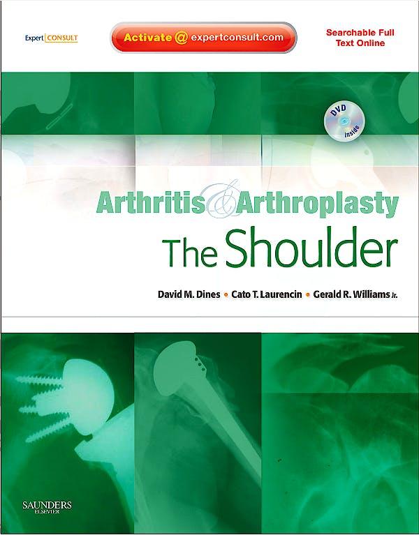 Portada del libro 9781416049753 Arthritis and Arthroplasty. the Shoulder + Dvd (Searchable Full Text Online)